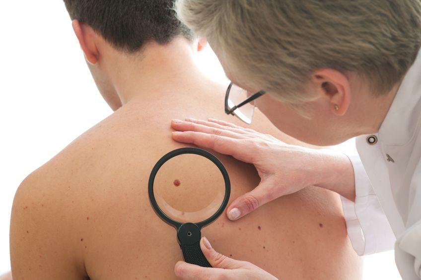 10 symptomen van kanker die je niet mag negeren