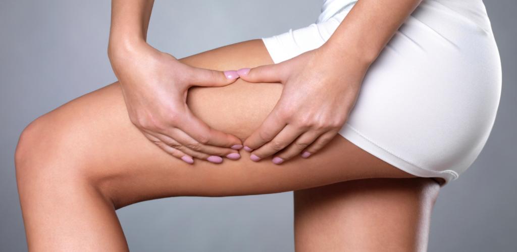 6 fabels over cellulite die je nooit moet geloven