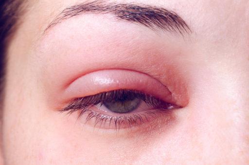 Blefaritis: oorzaken, symptomen en behandeling