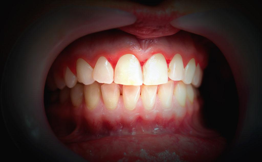 Wat betekent bloedend tandvlees? Tips van de expert