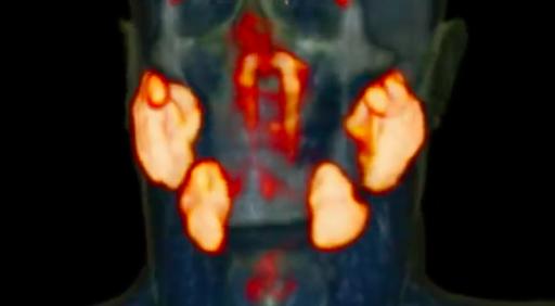 Un nouvel organe a été découvert… au beau milieu de notre tête