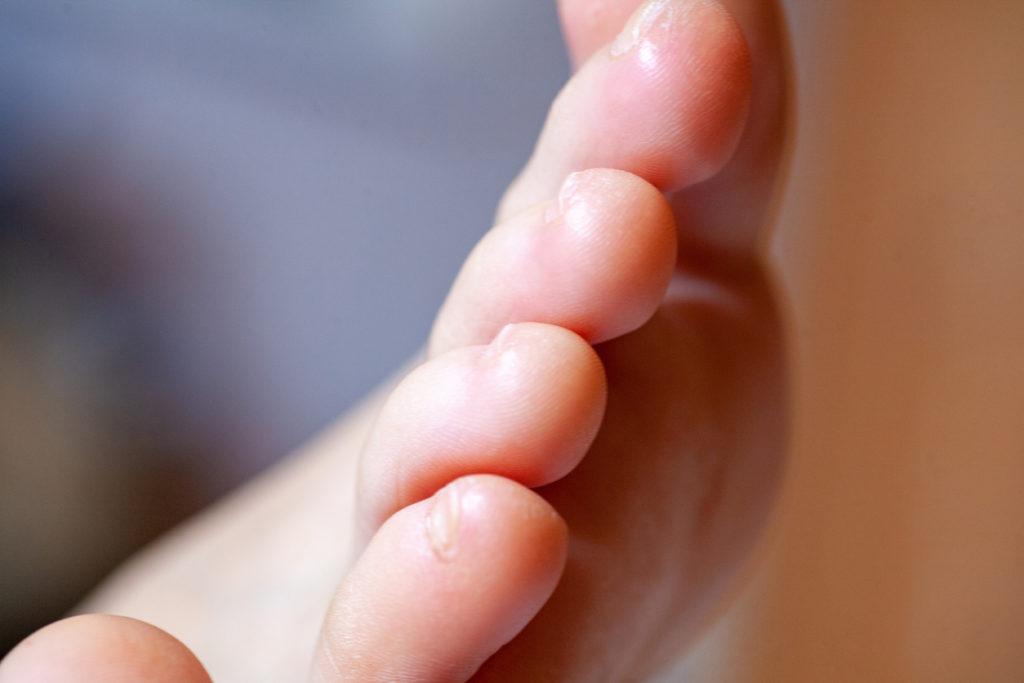 Wat te doen bij psoriasisnagels? Oorzaak, diagnose en behandeling van nagelpsoriasis