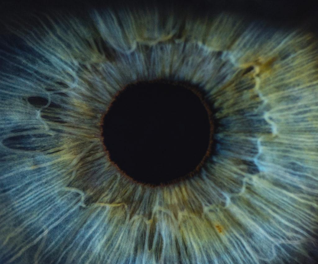 'Sterretjes' zien: Wat is de oorzaak & wat kun je eraan doen?