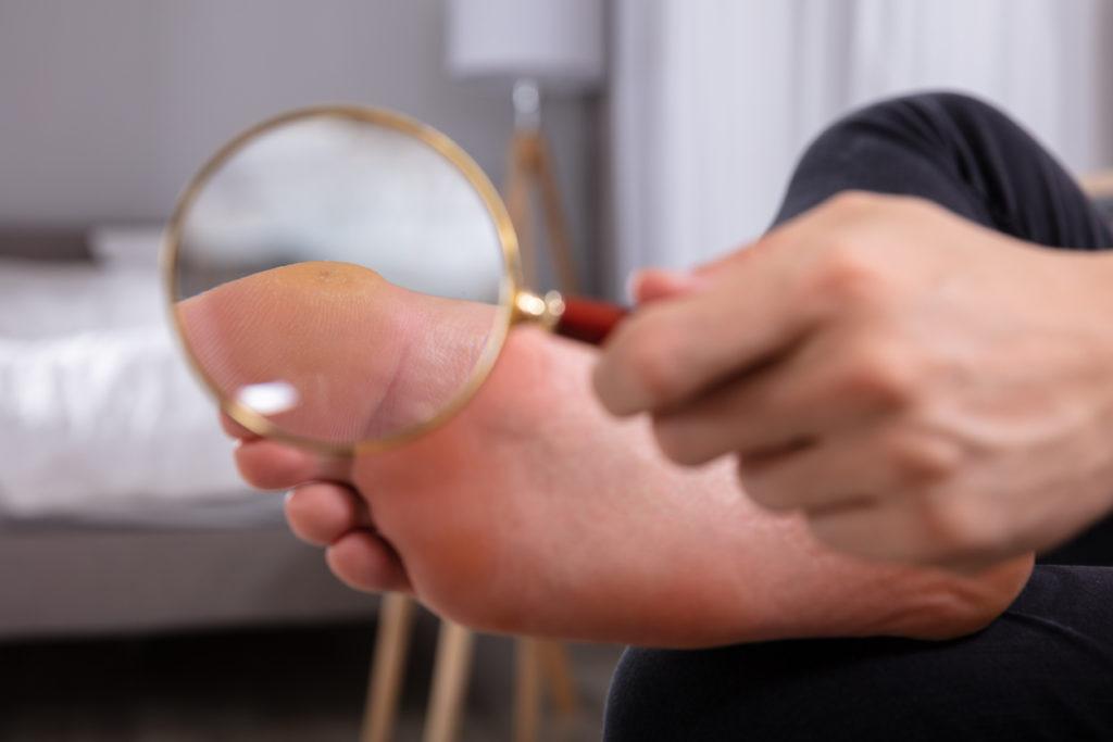 Wratten verwijderen: dokter of middel tegen wratten apotheek?