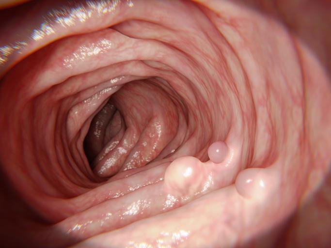 Abces op Darm: Wanneer is een Operatie nodig?
