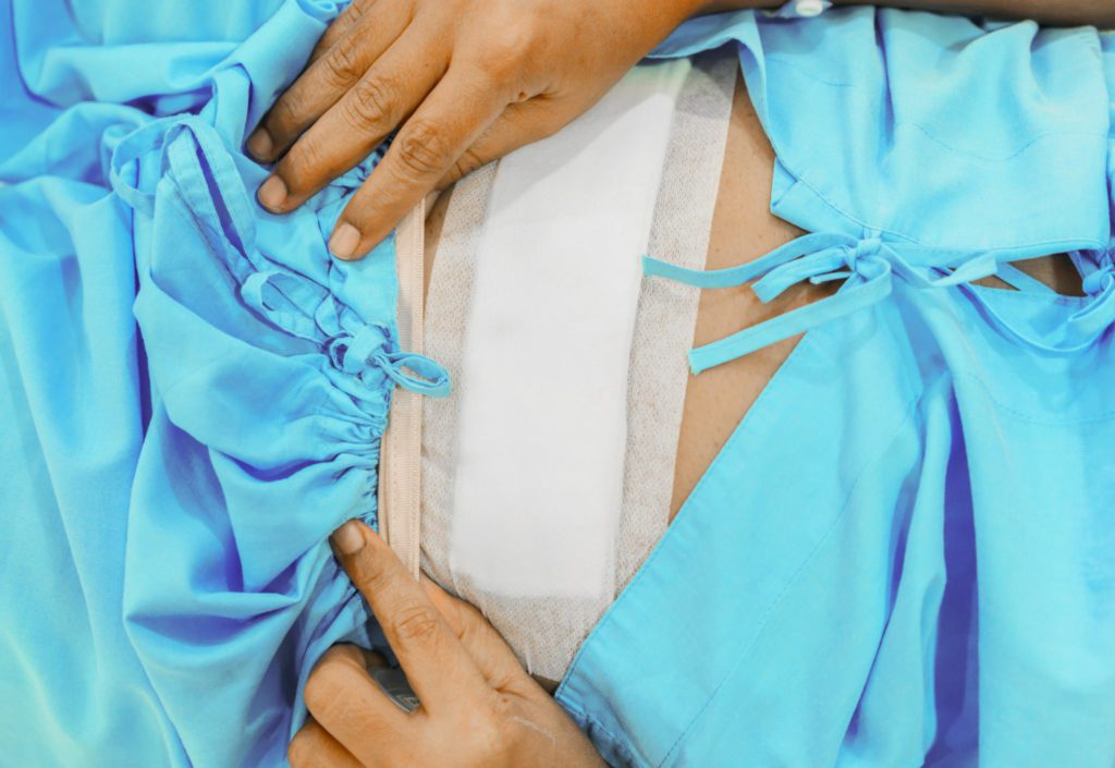 Baarmoeder verwijderen: Operatie + Herstel