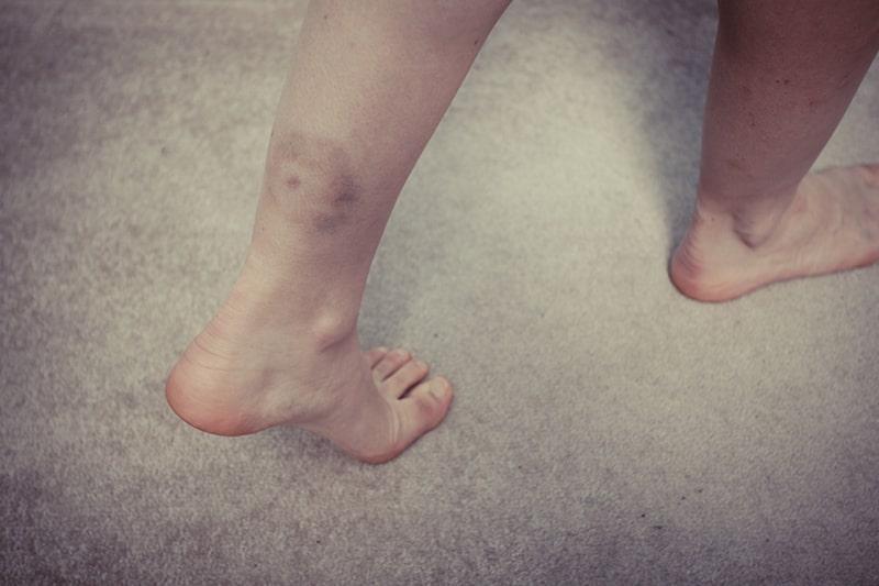 Bloederziekte Symptomen