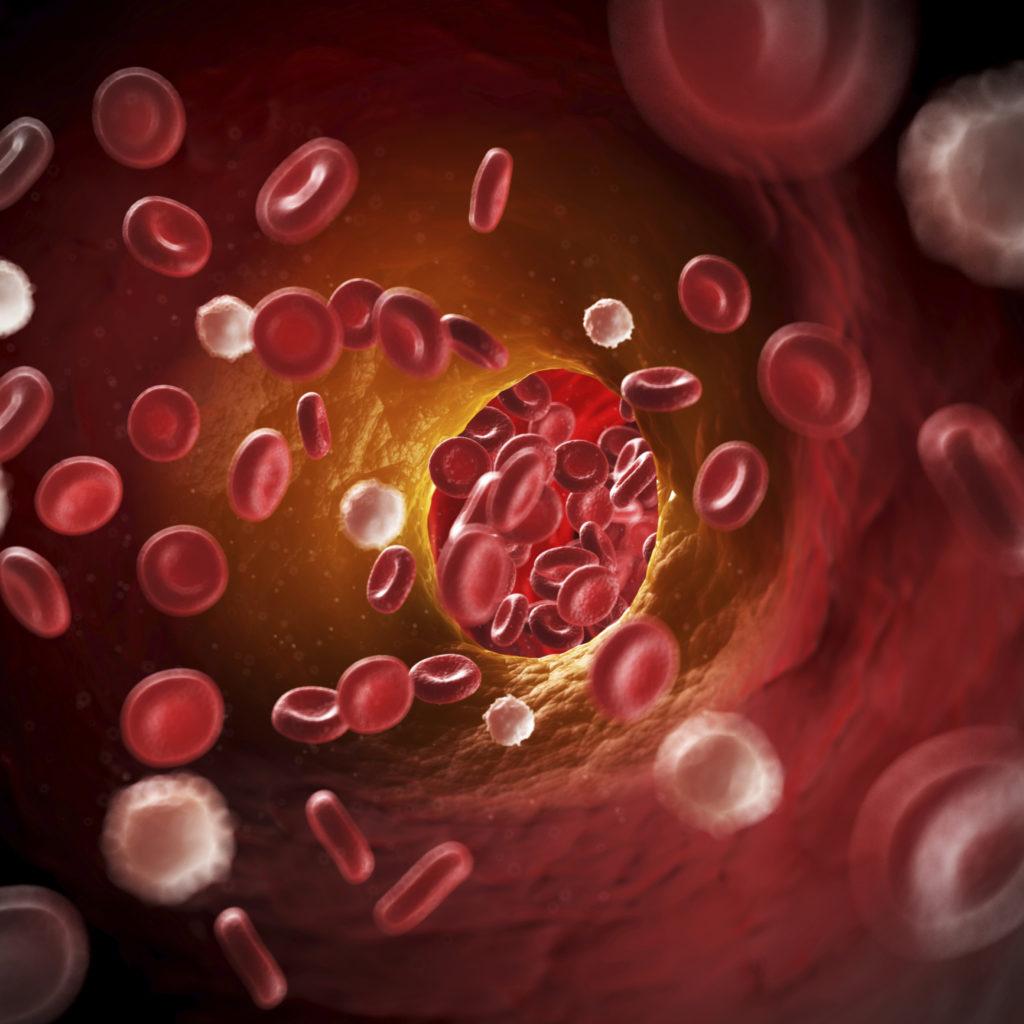 Cholesterol Symptomen