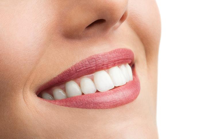 Door dit simpele trucje heb je in 5 minuten wittere tanden