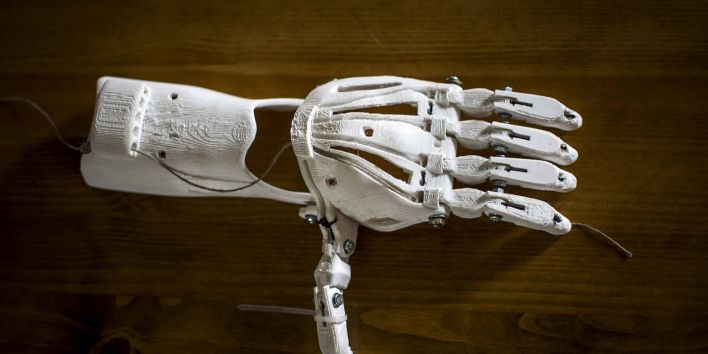 prostetic 3d printing hand