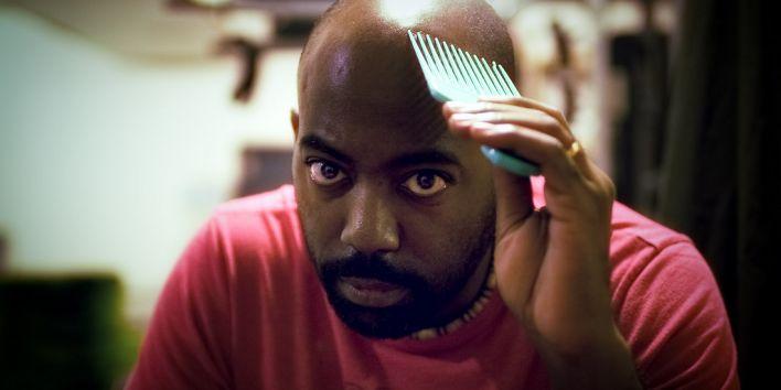 black man bald no hair hairloss