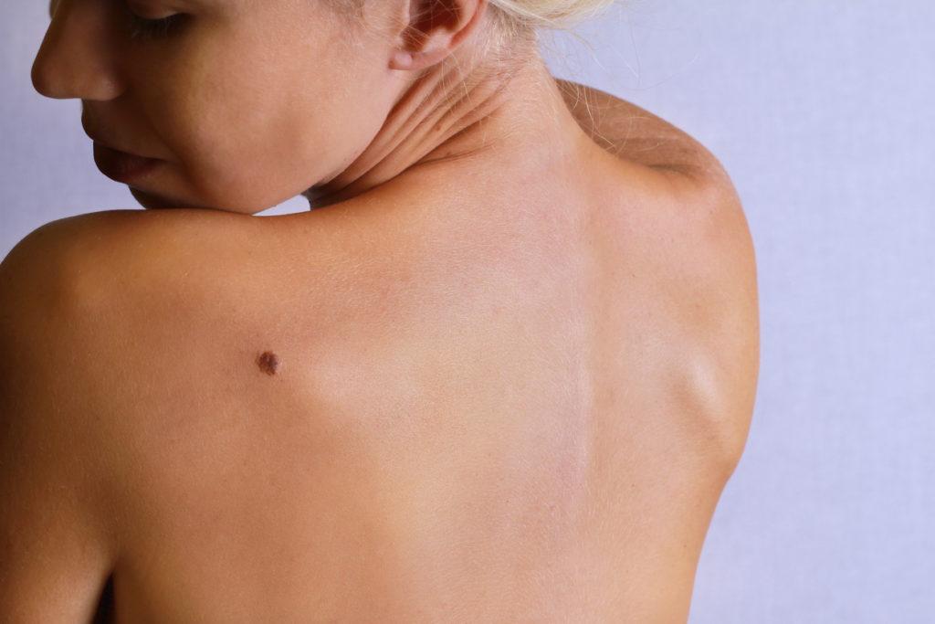 Genetische diagnose van melanoom kan voortaan met vloeibare biopsie