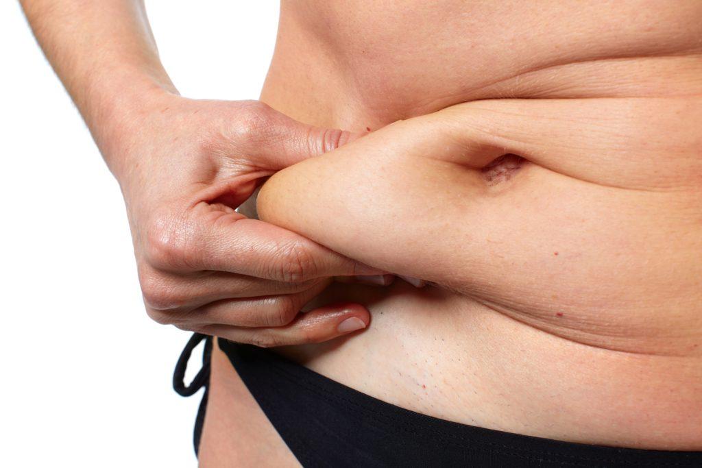 De gevolgen van overgewicht