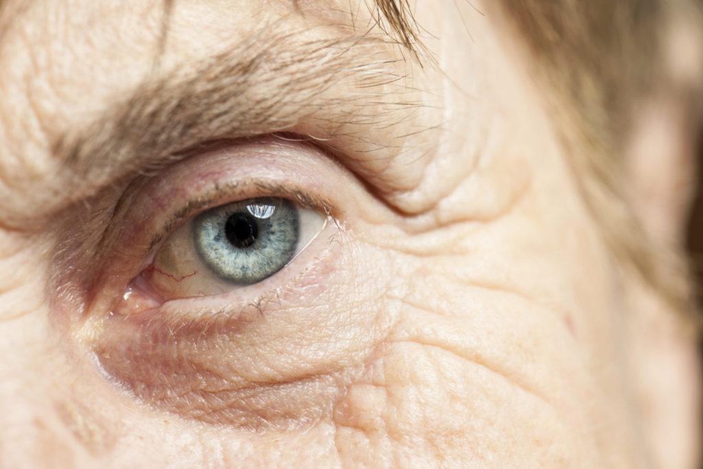 Glaucoom Symptomen