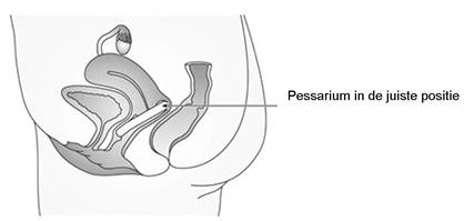 Hoe gebruik je een Pessarium?