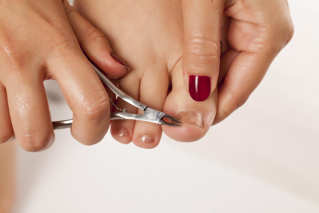 Nos meilleurs conseils pour éliminer vous-même une mycose des ongles