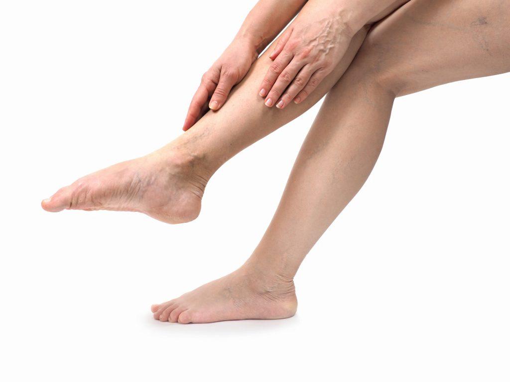 Vaak last van zware benen? Het is niet zo onschuldig als je denkt!