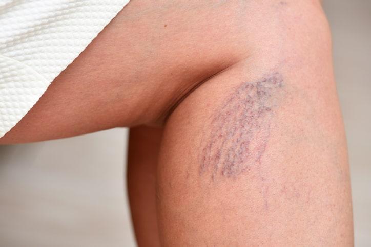 Feit of fabel: alleen oudere mensen hebben last van spataders en nog 5 weetjes over de veneuze ziekte