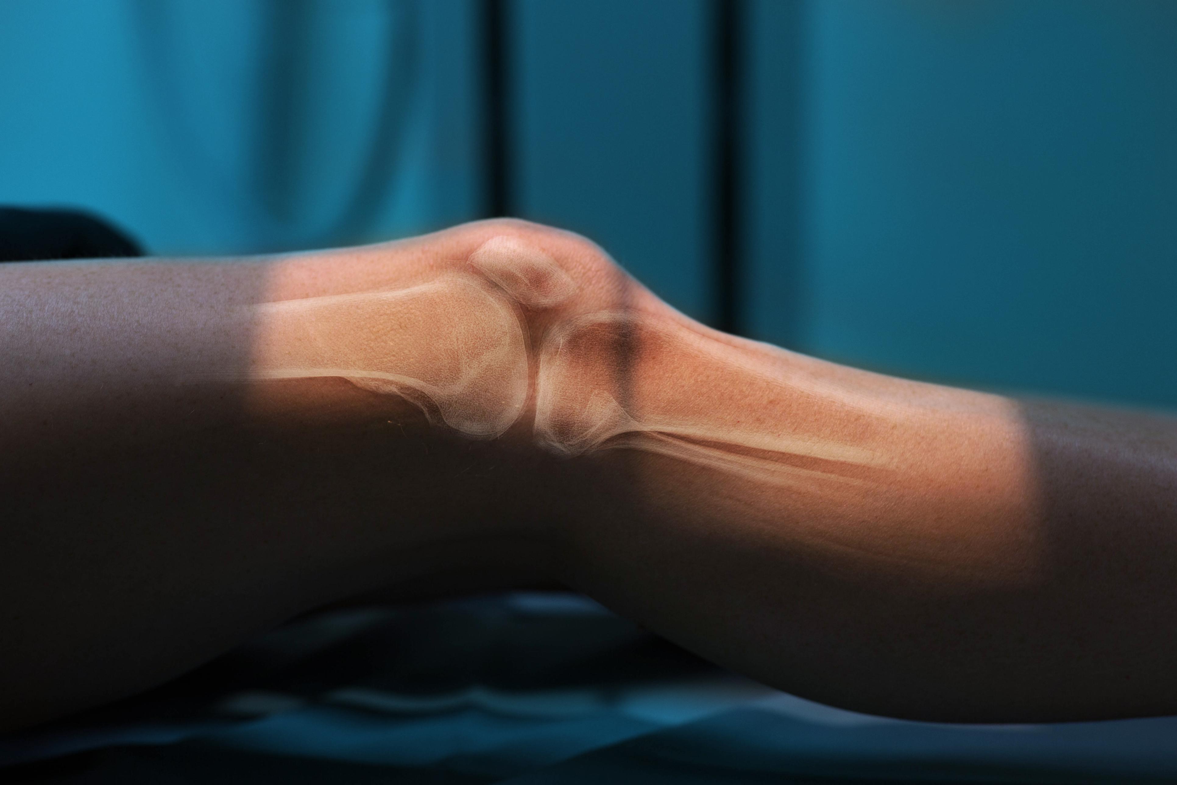 Arthrose du genou : voici ce que vous devez savoir