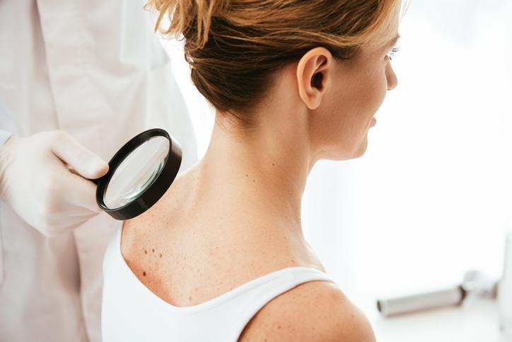 Leuvense onderzoekers ontdekken potentiële behandeling tegen huidkanker