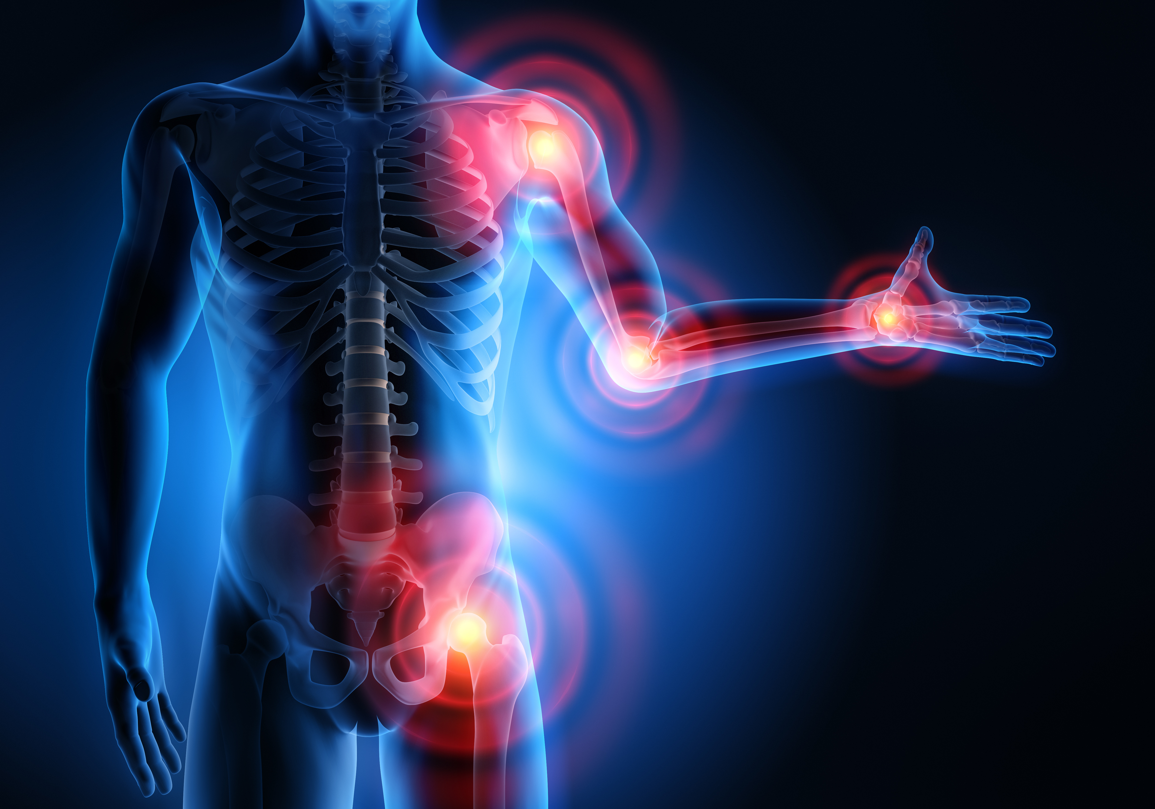 Inflammation des articulations