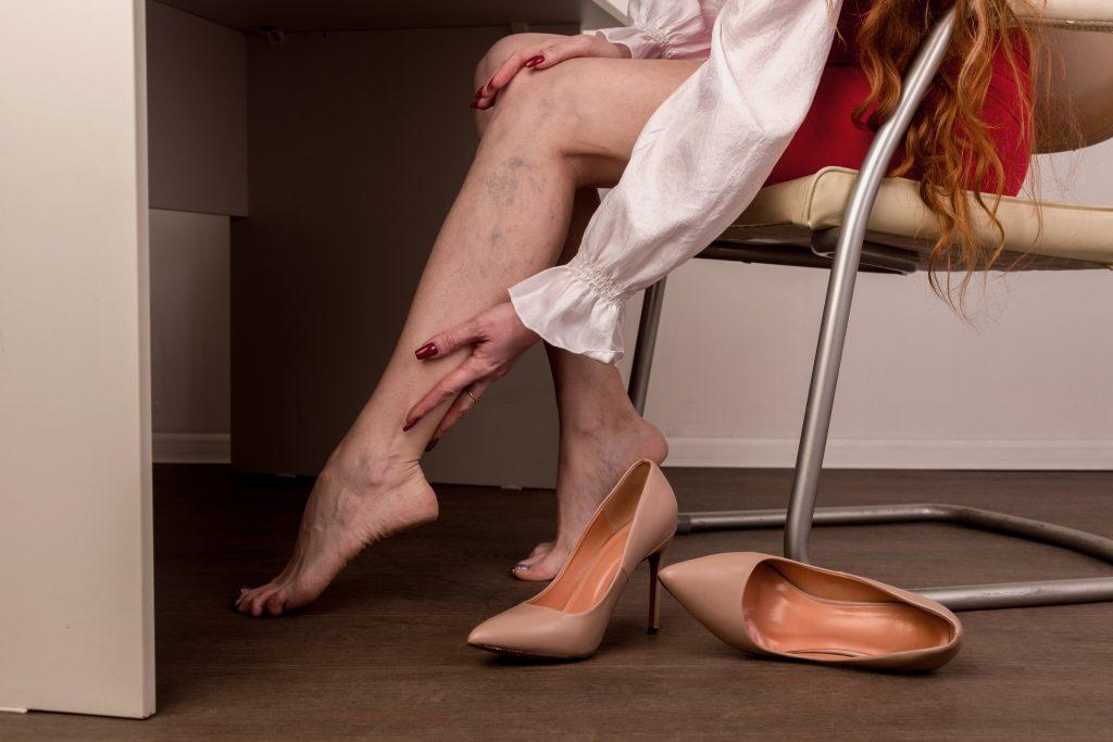 Qu'est ce que la maladie veineuse? Causes, symptômes et traitement