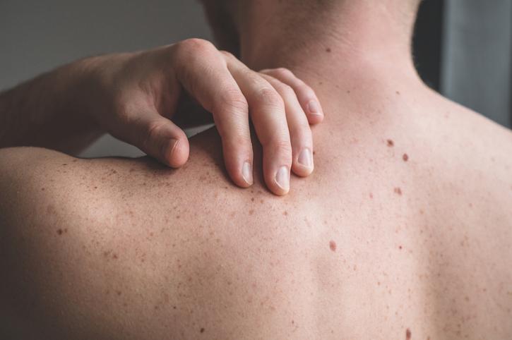 Nieuw onderzoek: hoog testosterongehalte verhoogt risico op huidkanker bij mannen