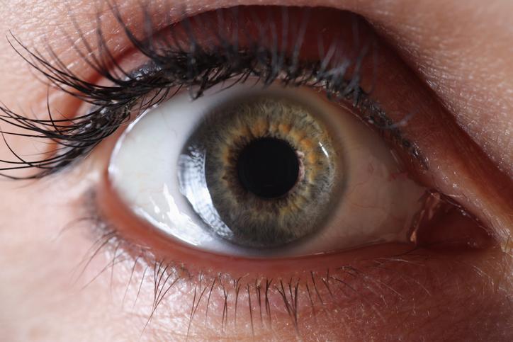 Glaucoom: wat is het en kun je het voorkomen? Wij vroegen het aan de oogarts!