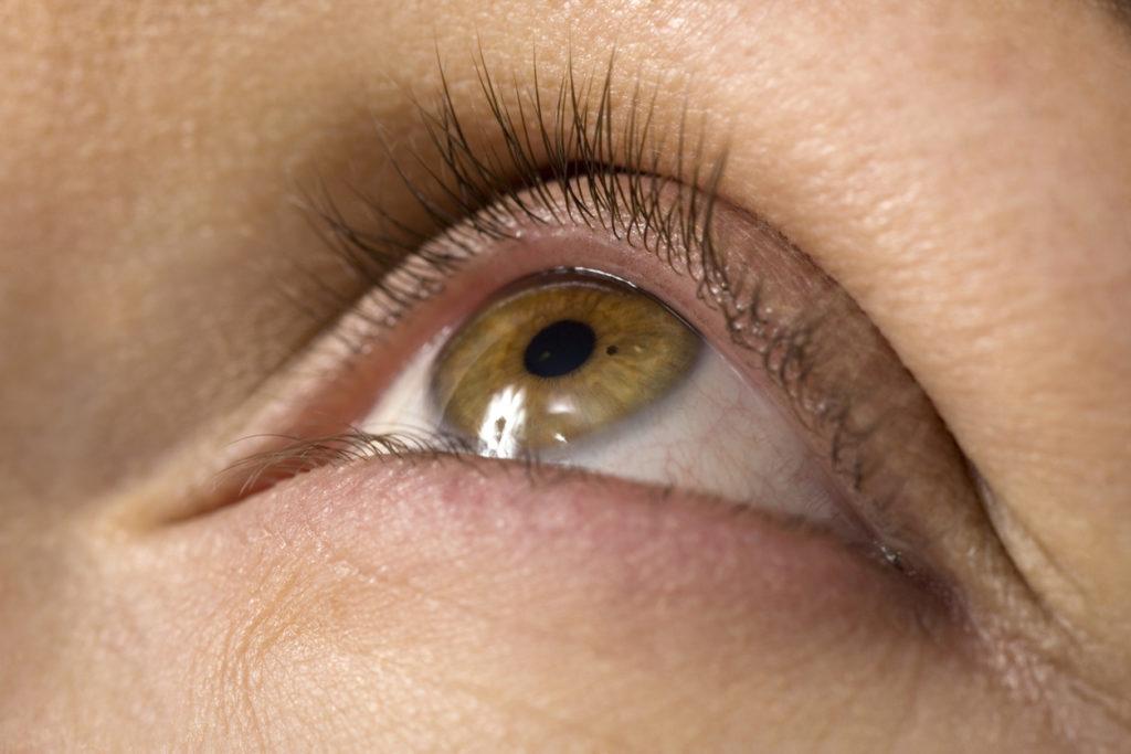 5 oorzaken van jeukende oogleden