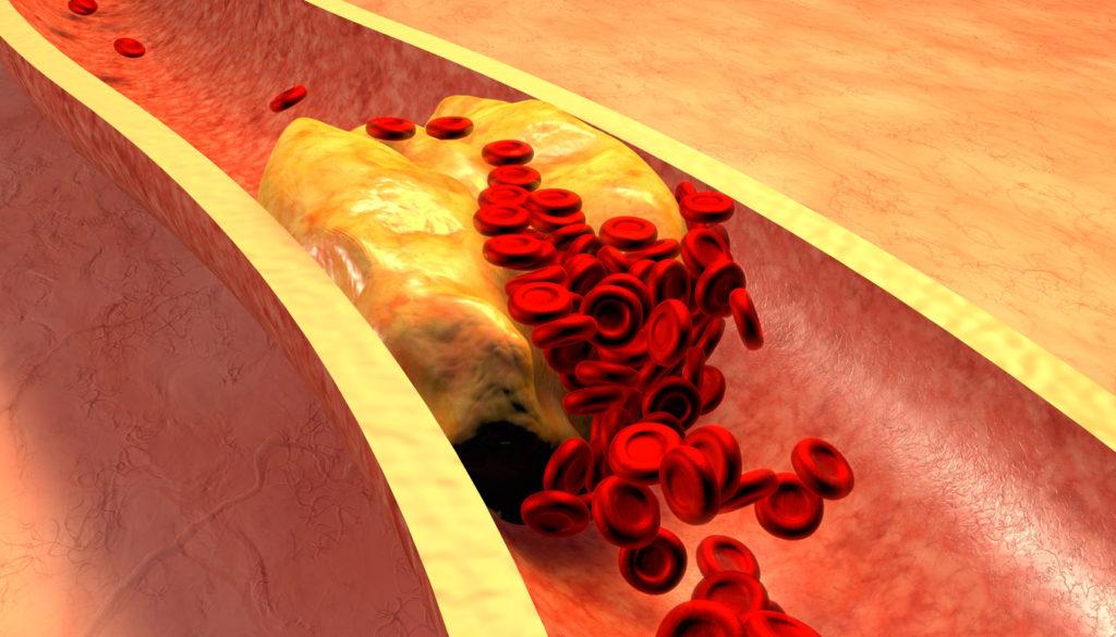 Experts aan het woord: zo kunnen we onze cholesterol verminderen