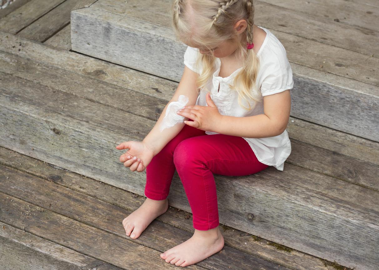 Eczéma : crème, pommade ou gel ? Comment traiter l'eczéma chez les bébés/enfants ?