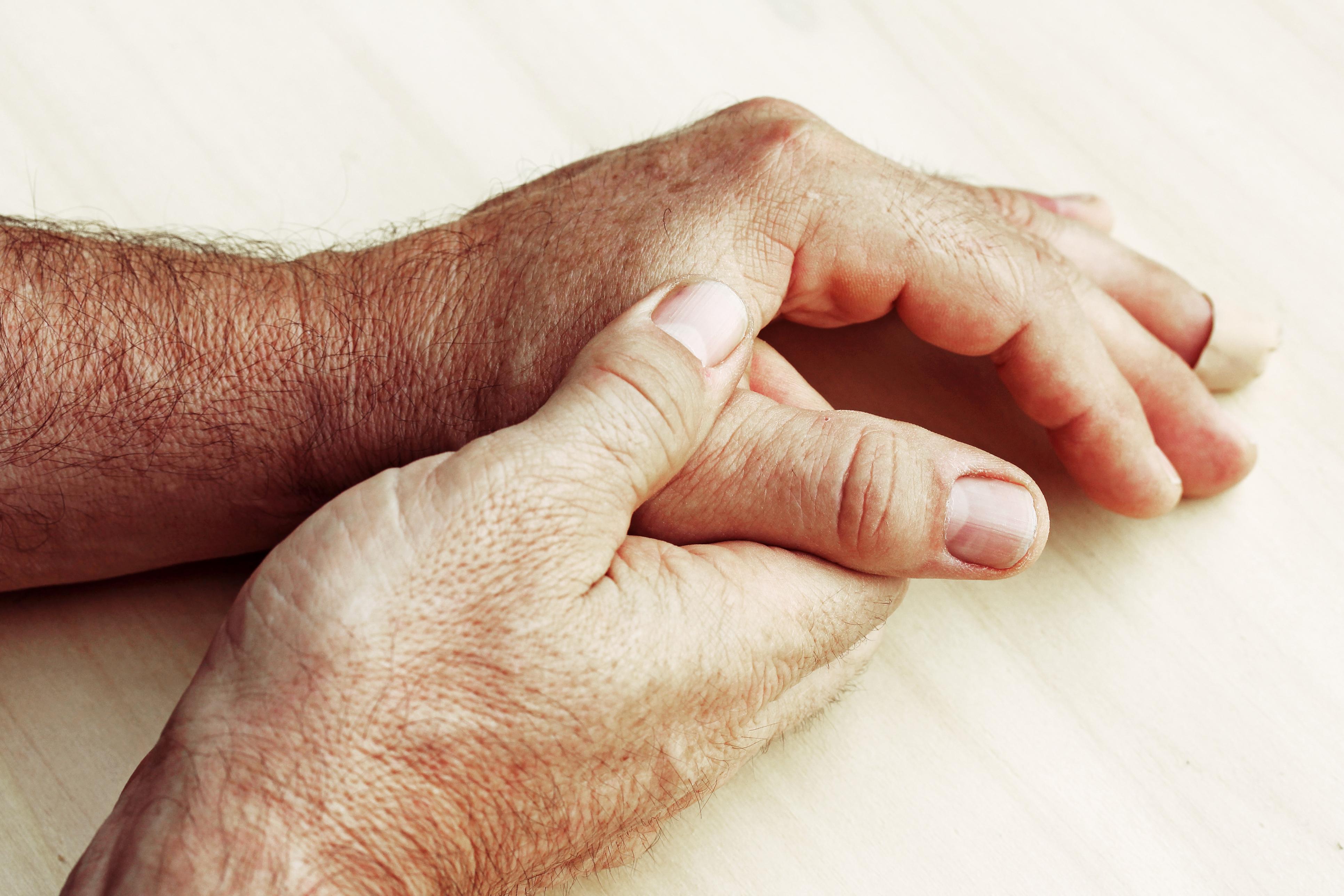 Arthrose de la main