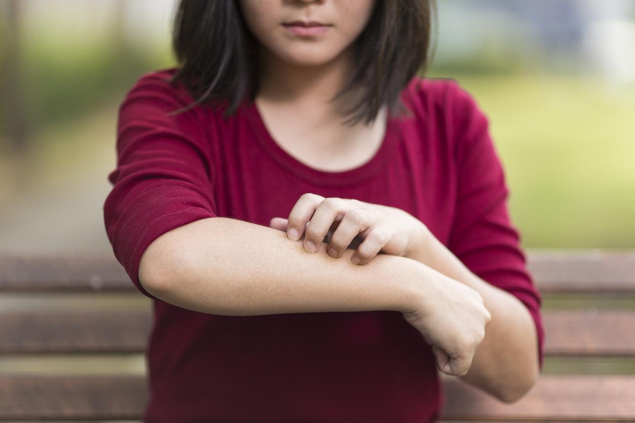 Reconnaître l'eczéma atopique chez votre enfant