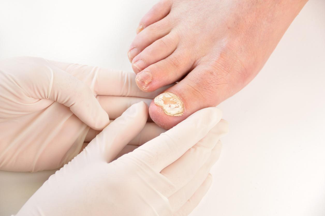 5 idées vraies/fausses sur les mycoses des ongles
