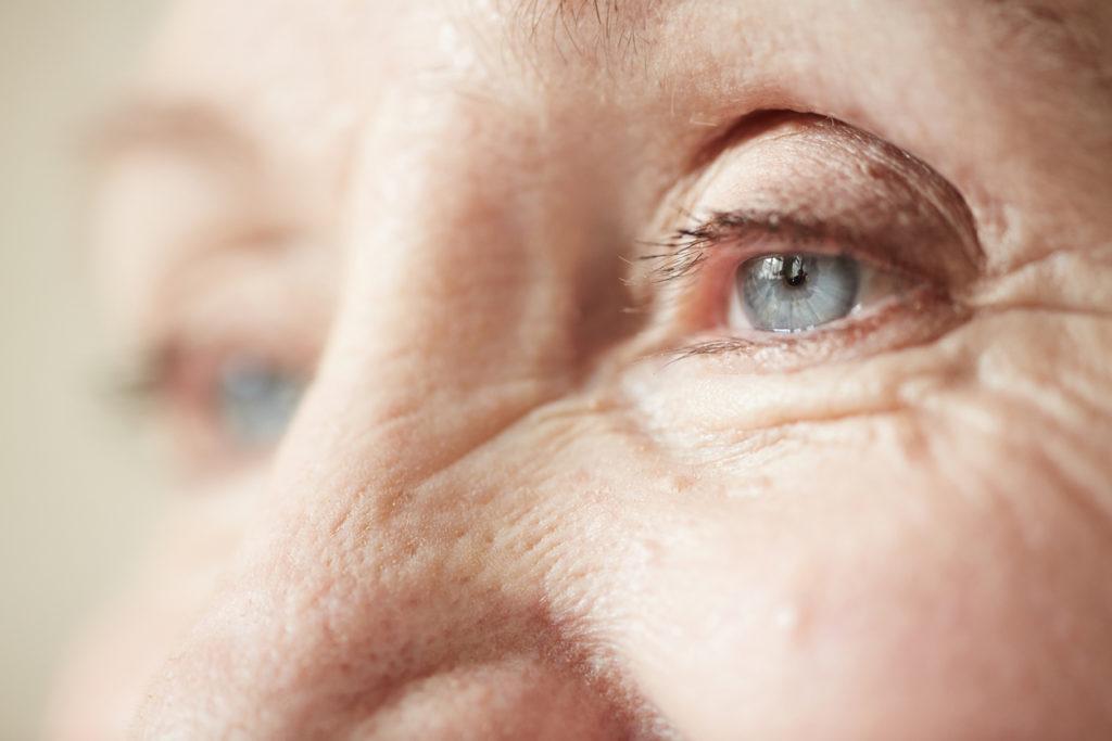 Aha: Daarom zie je de eerste tekenen van veroudering rond de ogen…