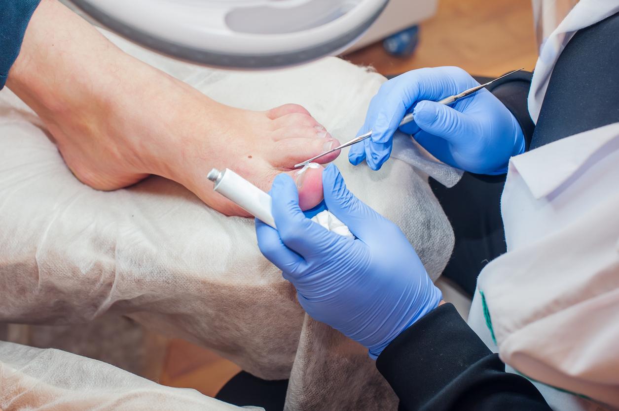 Mycose des ongles : est-ce contagieux ?