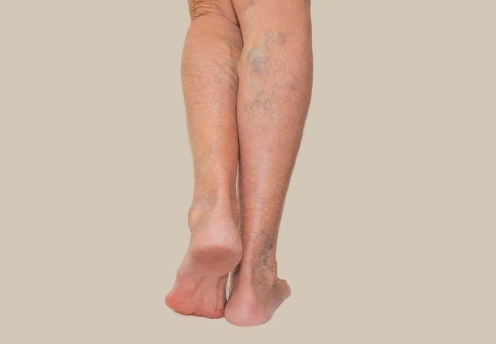 10 tips om zware, pijnlijke benen en spataders te voorkomen