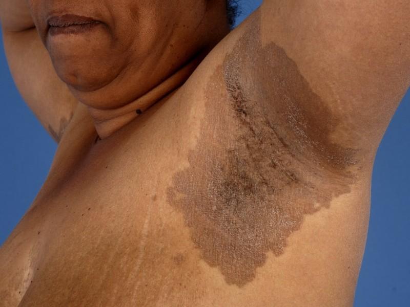 Infectie van de huid: Erythrasma (Corynebacterium minutissimum)