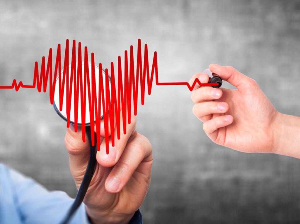 Innoveren om sterftes bij cardiovasculaire gebeurtenissen te verminderen