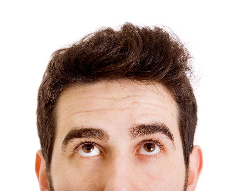 Kaal worden en haaruitval bij mannen