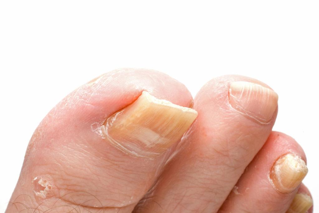 Kalknagels behandelen en verwijderen: 9 tips