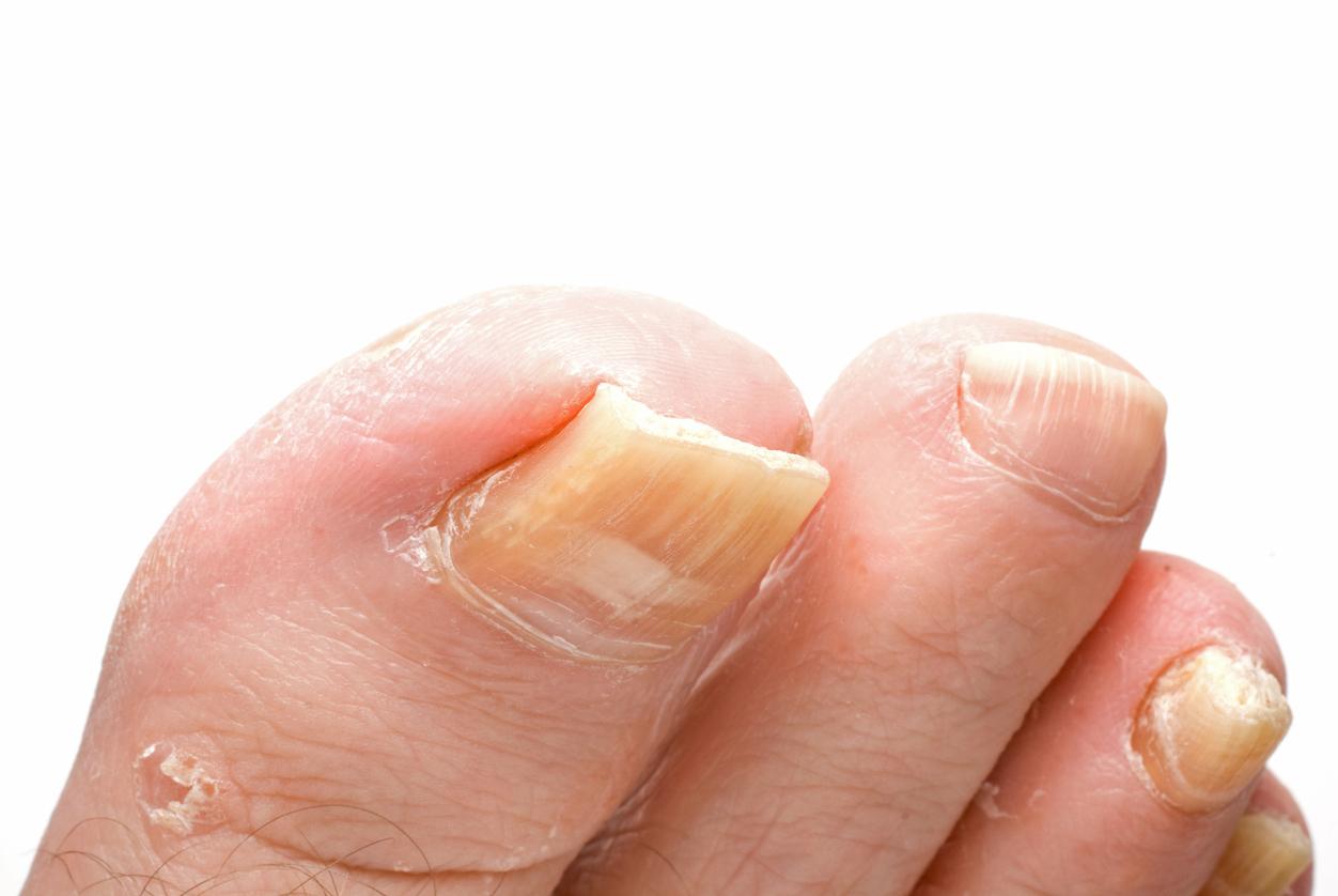 9 conseils pour traiter et éliminer une mycose des ongles