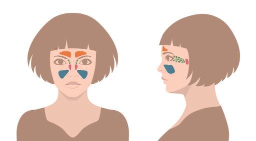 Neuspoliepen: Diagnose en Behandeling