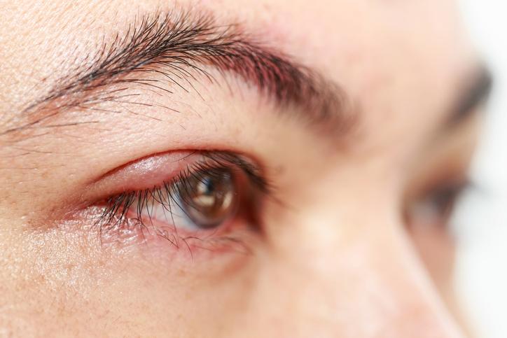 Ontstoken oogleden: Blefaritis – Blepharitis