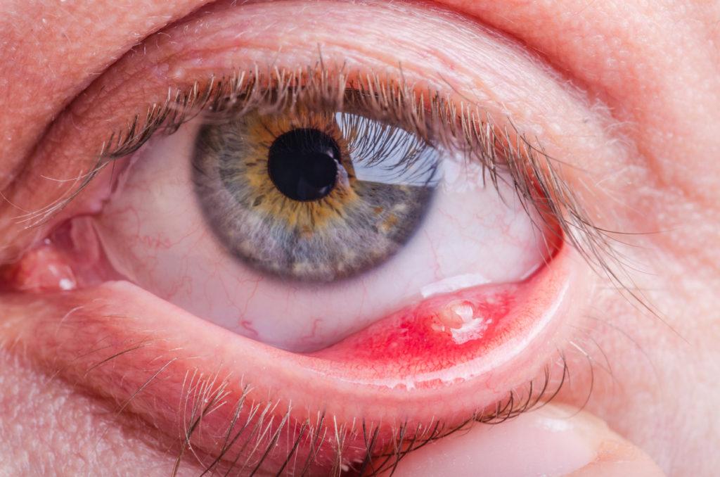 Ontstoken ooglid: oorzaken en wat te doen