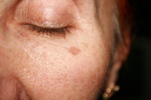 Pigmentvlekken in het gezicht: hoe ontstaan ze en wat kun je eraan doen?