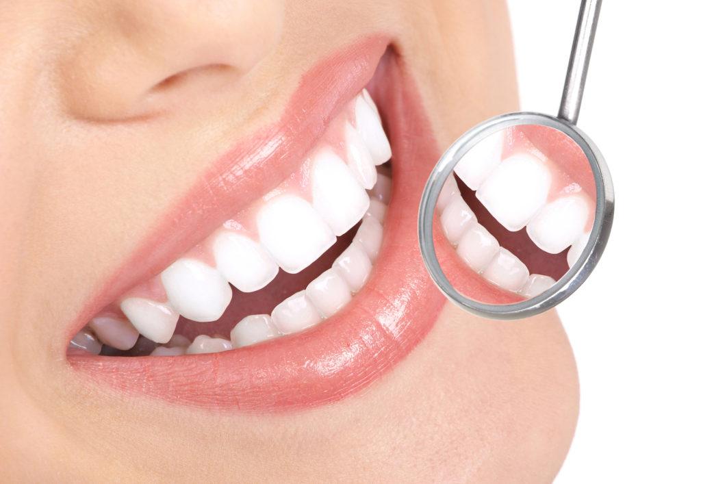 Porseleinen veneers: dé oplossing voor mooie tanden en een schitterende glimlach!