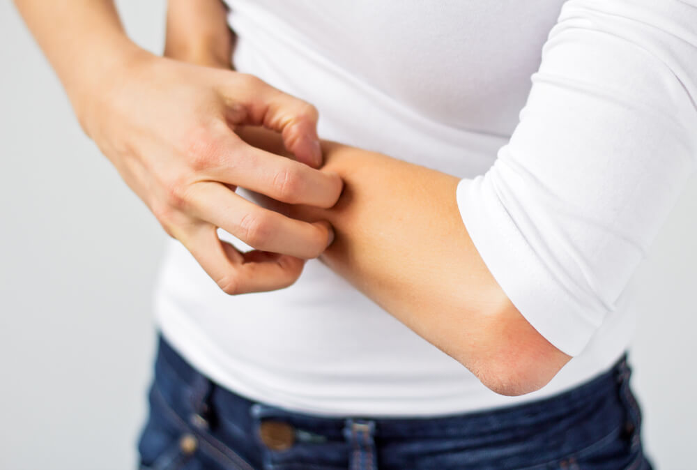 Pseudo-allergeenvrij dieet (Voedselovergevoeligheid – Voedselallergie)