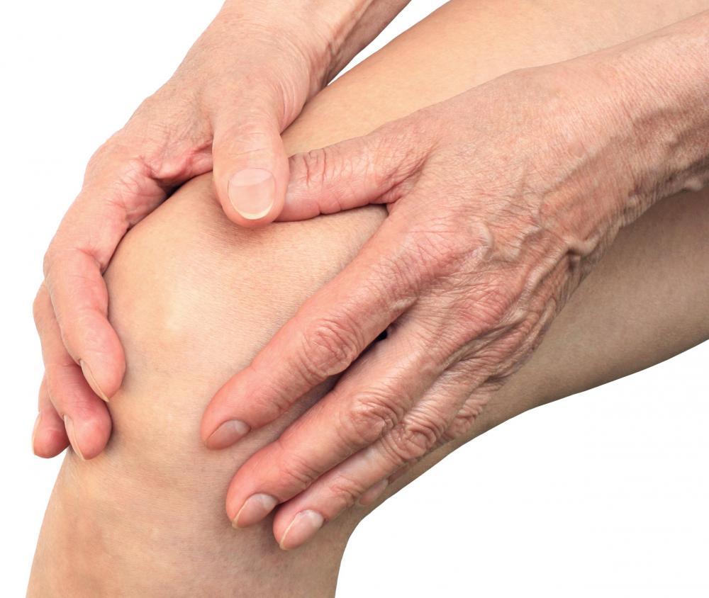 Reumatoïde artritis (Ontstekingsreuma): Symptomen & Behandeling