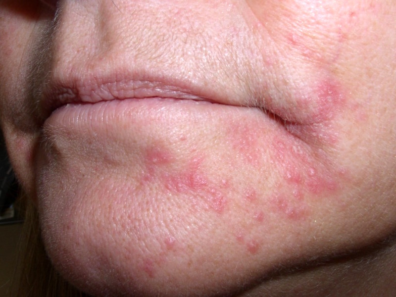 Rode bultjes op je huid of in je gezicht?